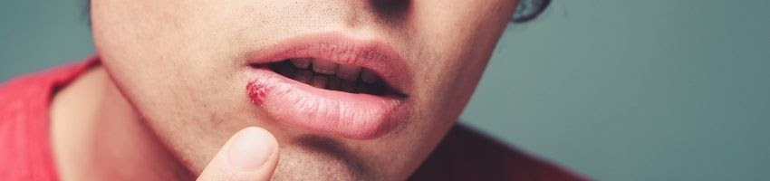 Can Stress Trigger Cold Sores?
