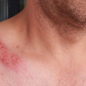 A picture of a man who has a herpes on his skin